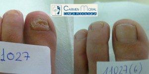 hongos en las uñas tratamiento