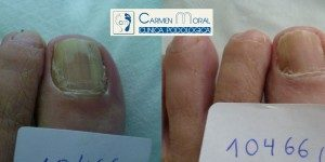 tratamiento hongos en las uñas
