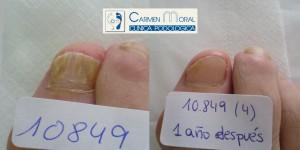 tratamiento hongos uñas