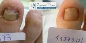 tratamiento hongos pies