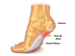 dolor punzante en el talon del pie